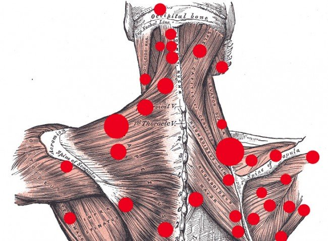 Trigger Points and Treatment Modalities